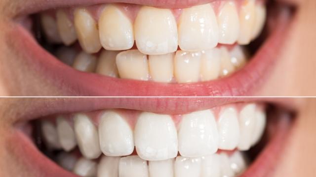 Врачи рассказали о методиках безопасного отбеливания зубов